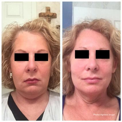 Kybella Injections Farmington Hills, MI