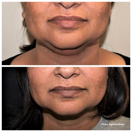 Kybella Treatments Farmington Hills, MI