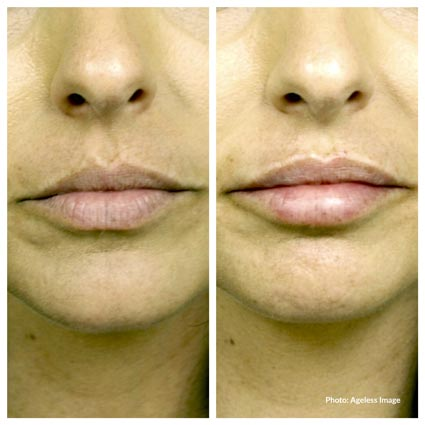 Restylane Defyne Treatment Farmington Hills, MI